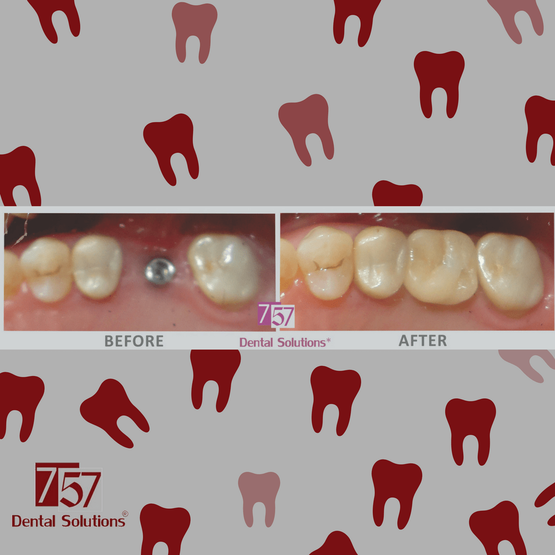 Before after fotos cosmetic dentistry