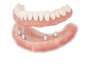 Explaining all on 4, all on 6 and all on 8 dental implants