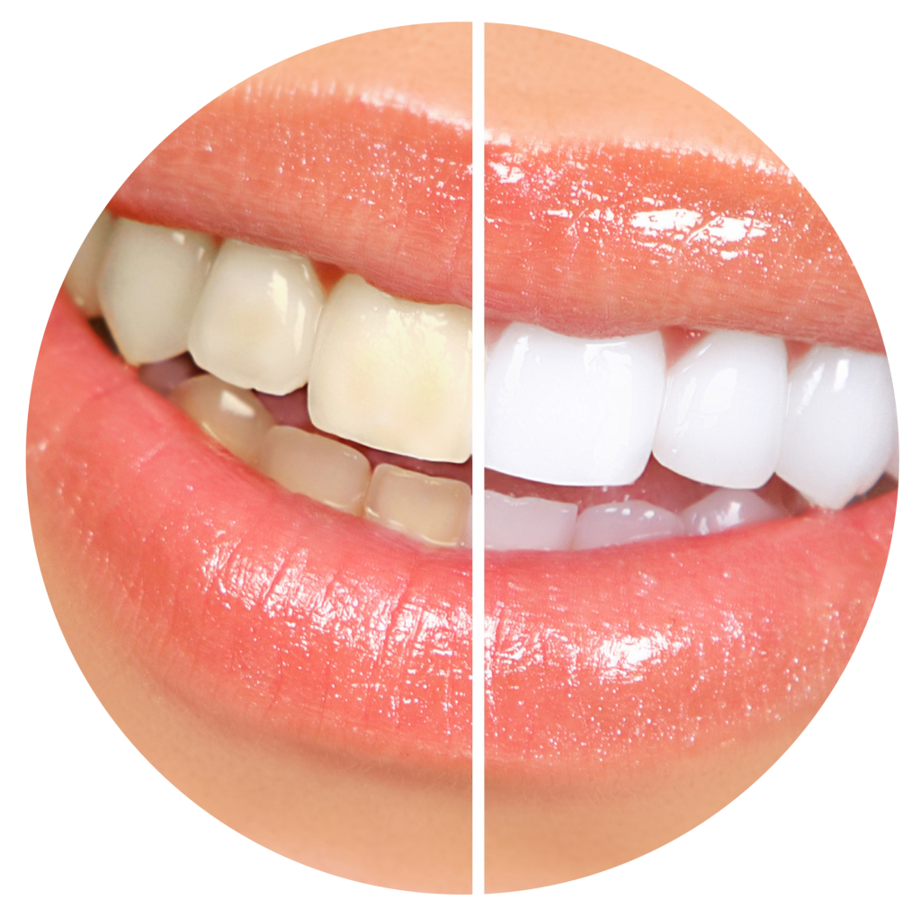 Teeth Whitening, what you need to know