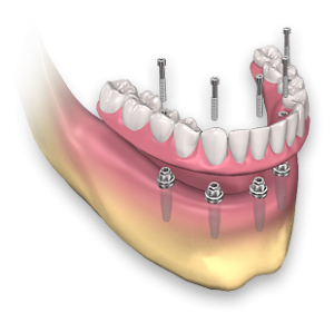 Dental Prosthesis in mexico