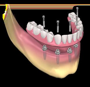 Dental Prosthesis in mexico