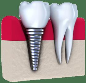 mini dental implants mexico