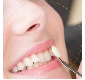 Dental Implants, Dental Veneers and Cosmetic Dentistry in Reynosa Mexico.